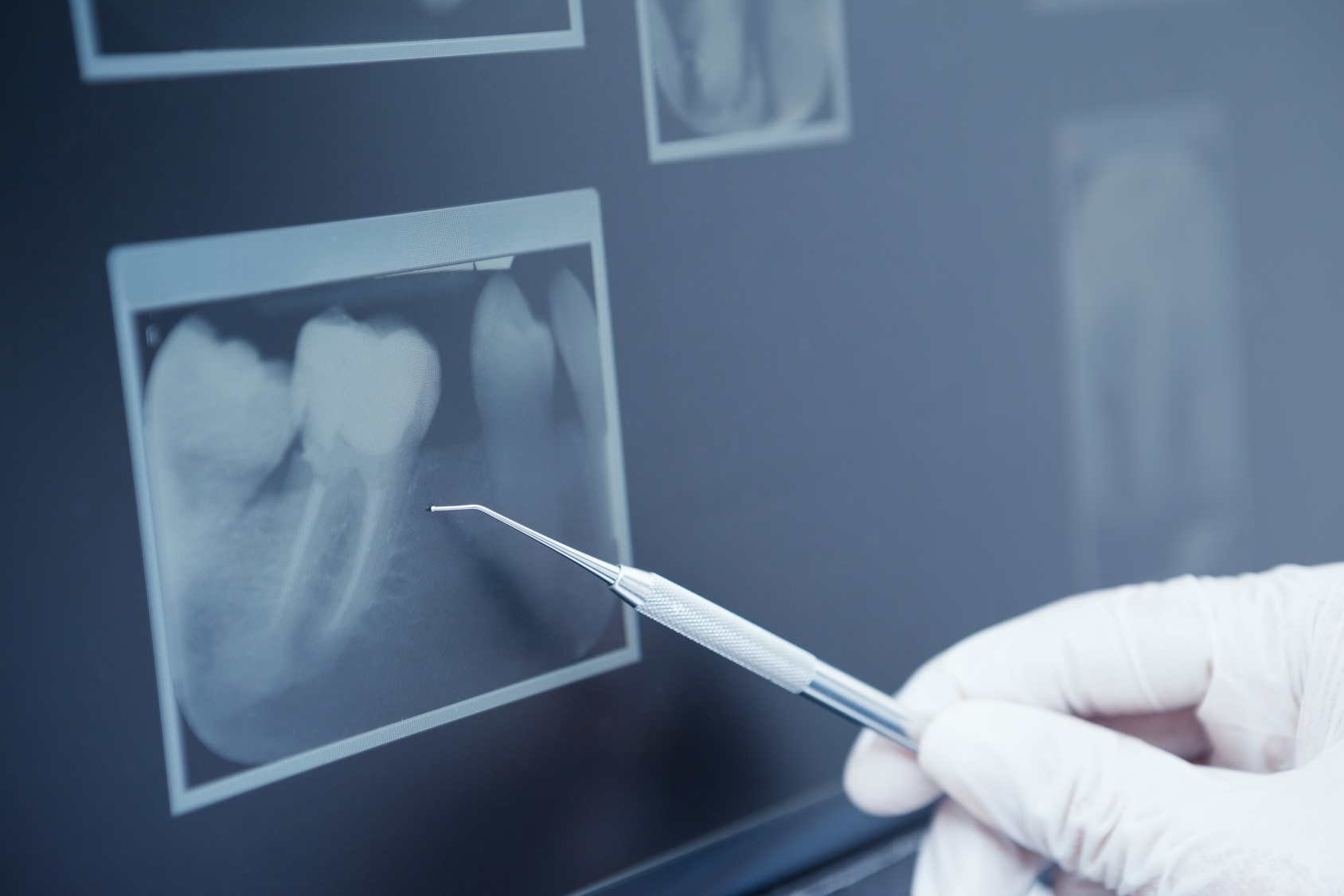 what qualifies as emergency dental care